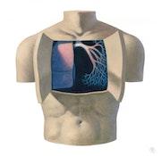 Asthma and chronic bronchitis. Illustration & Illusion